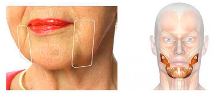 Появление брылей на лице