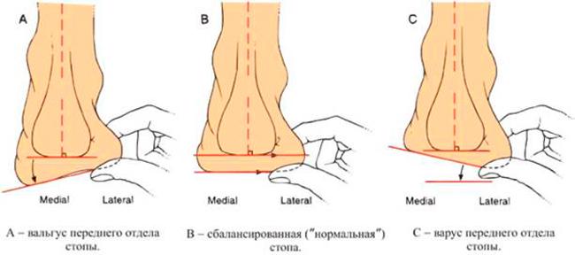 Причины вальгусной деформации стоп