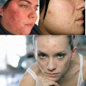 Проблемная кожа - ботокс запрещен