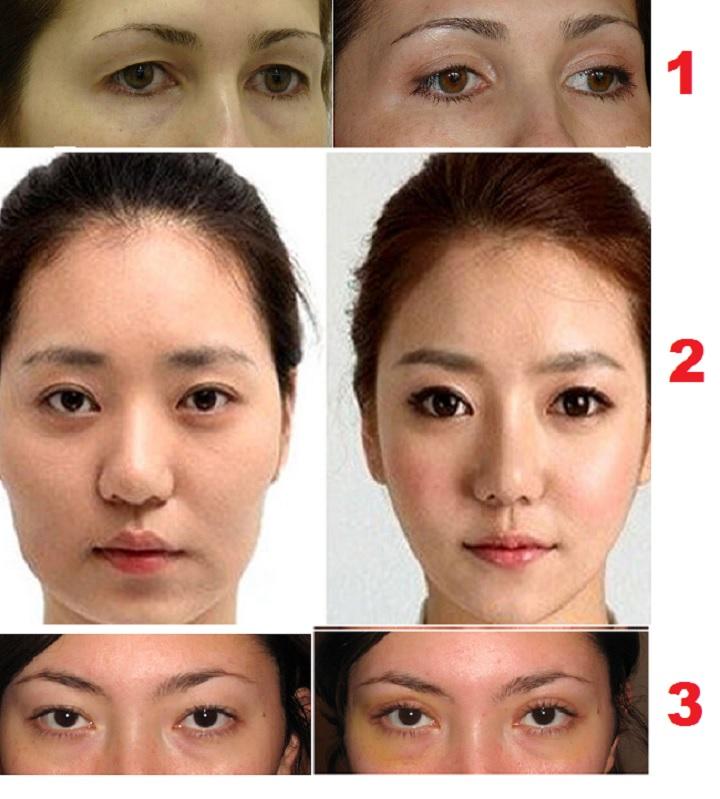 Изменение разреза азиатских глаз