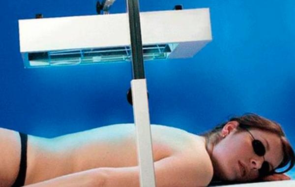 Устранение белых пятен при помощи фотохимиотерапии (ПУВА-терапия иными словами)