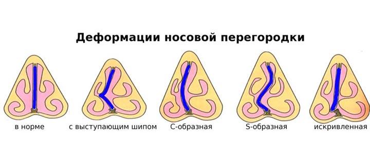 Виды искривления носовой перегодки