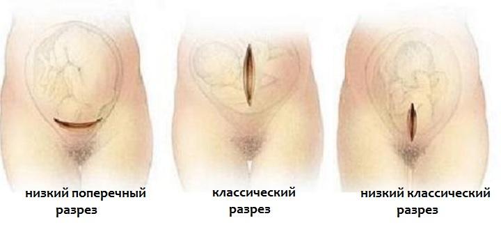 Варианты рассечения при кесаревом сечении