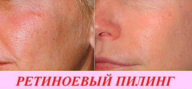 Ретиноеновый пилинг лица