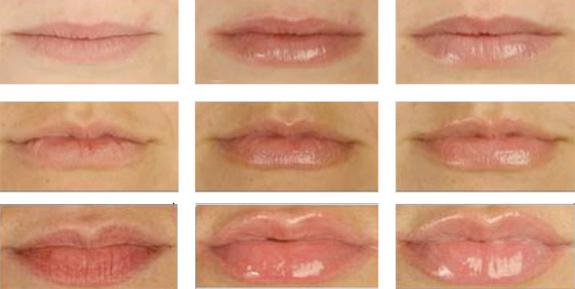 Результаты коррекции губ