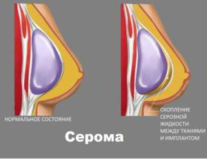 Схема образования серомы в груди