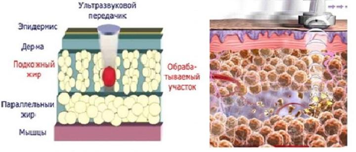 УЗ-волны разрушают жировые клетки