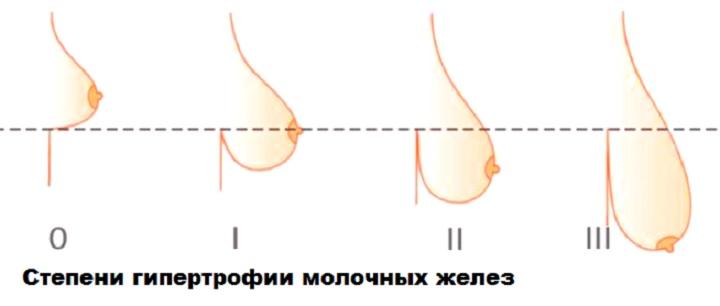Степень отвисания груди