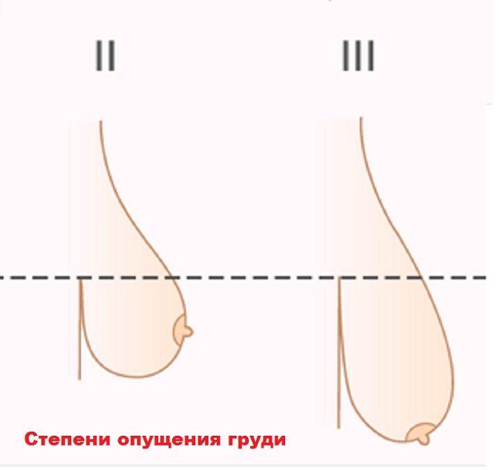 Гипоплазия