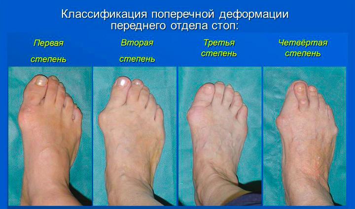 Степени вальгусной деформации ступни