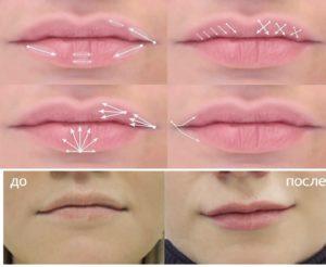 Техника работы шприцем при увеличении губ