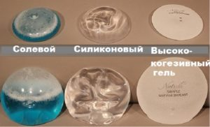 Солевые импланты