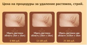 Пример стоимости процедуры удаления растяжек лазером