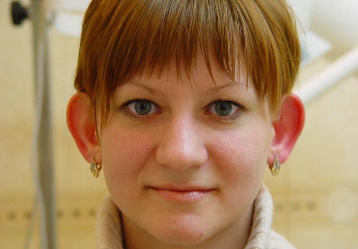 Оттопыреные уши