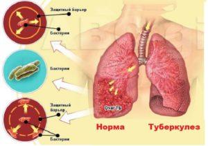 Схема образования туберкулеза