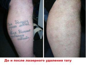 Татуировка до и после сведения лазером