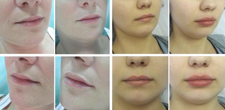 Увеличение губ с помощью геля