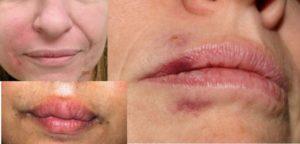 Последствия в местах уколов на лице
