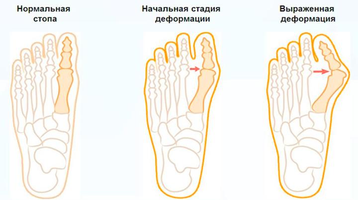 Стадии вальгусной деформации ступни