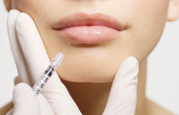 Увеличение губ гиалуроновой кислотой Все что об этом нужно знать