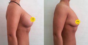 Результат вертикальной подтяжки груди