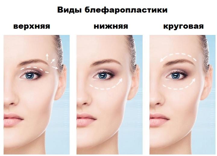 Три вида блефаропластики