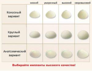 Форма имплантов для груди