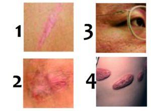 Типы и виды рубцов на коже