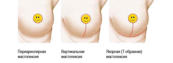 Основные виды подтяжек груди