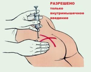 Разрешенное введение дипроспана