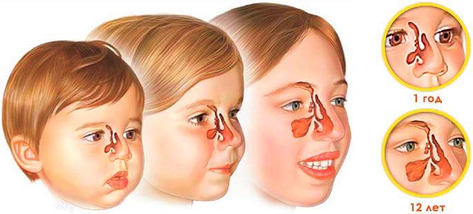 Воспаление гайморовых пазух - результат искривления носовой перегородки