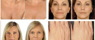 До и после воздействия гилауроната на части тела