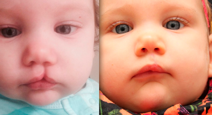 Ребенок с заячьей губой после операции