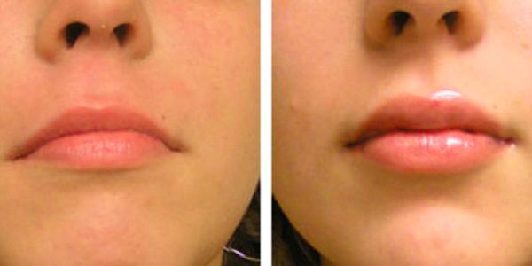 Процедура ботокса губ