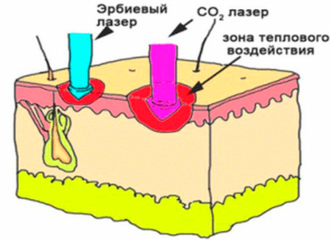 Действие лазера СО2
