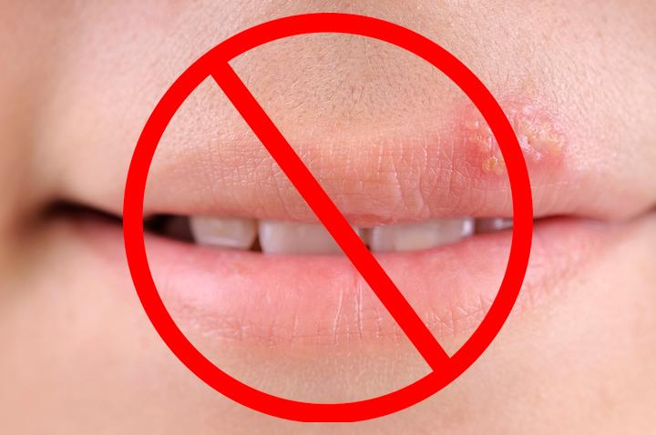 Нельзя проводить липофилинг при герпесе губ