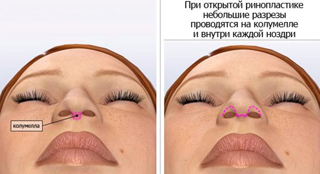 Открытая ринопластика носа