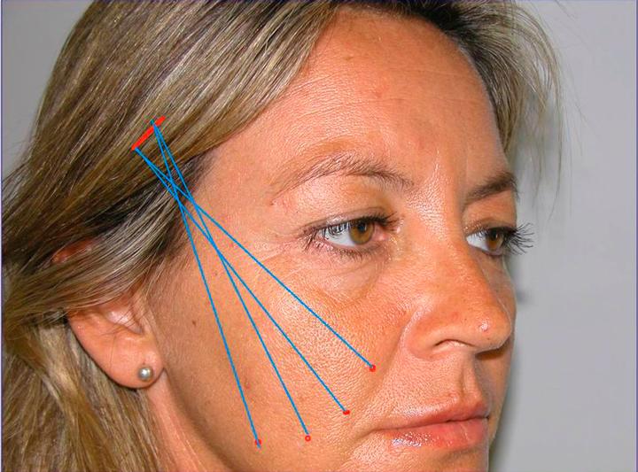 При подтяжке лица золотыми нитяями нельзя делать процедуры микротоковой терапии