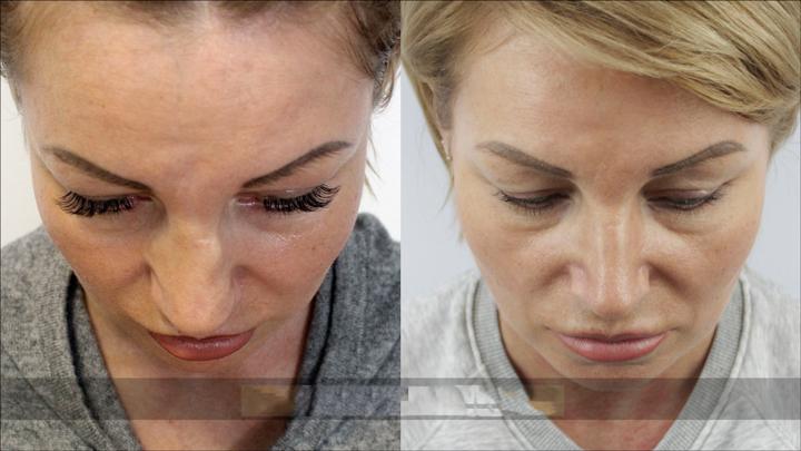 Посттравматическая ринопластика носа
