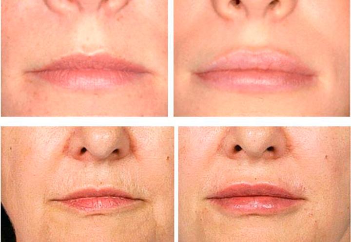 Эффективность коррекции губ