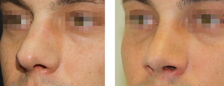 Ринопластика спинки носа результат