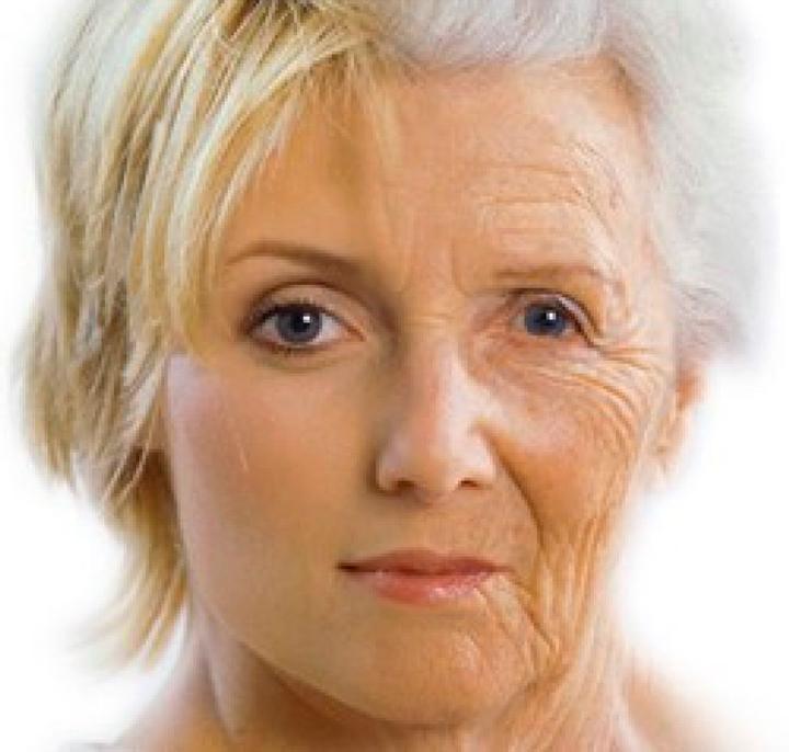 Морщинки, вызванные возрастом