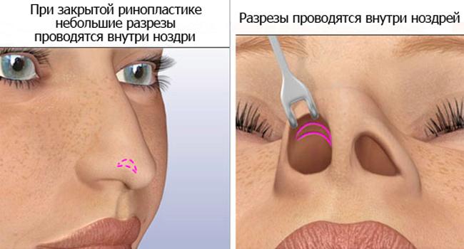 Закрытая ринопластика носа