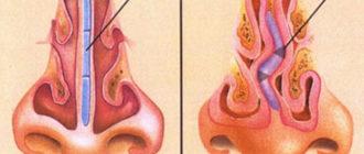 Что такое септопластика носа