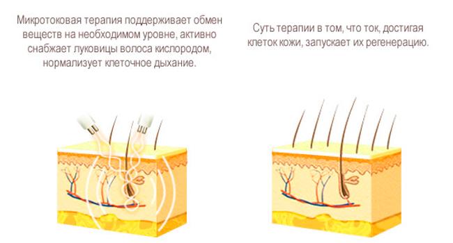 Принцип действия микротоковой терапии