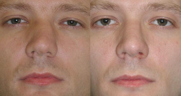 До и после процедуры септопластики