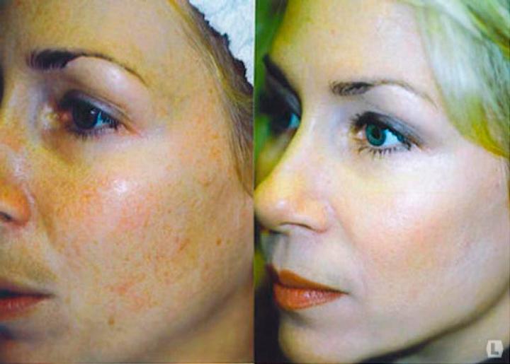 Элос процедуры для отбеливания кожи