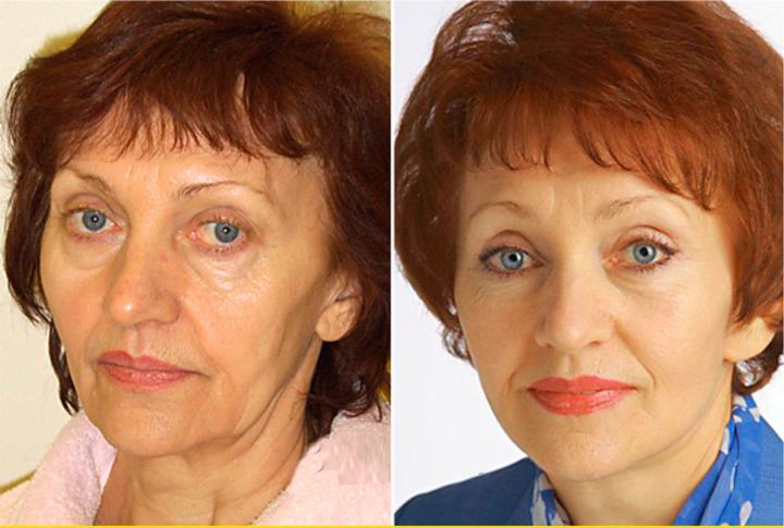 Эндоскопический лифтинг кожи лица