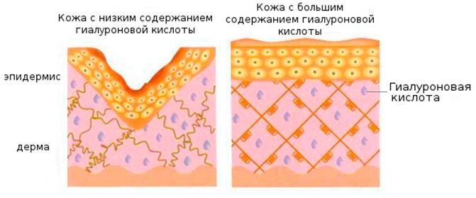 Гиалуроновая кислота - влияние на кожу