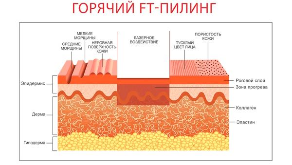 Горячий пилинг кожи лица